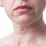 מיצוק צוואר והדגשת קו הלסת